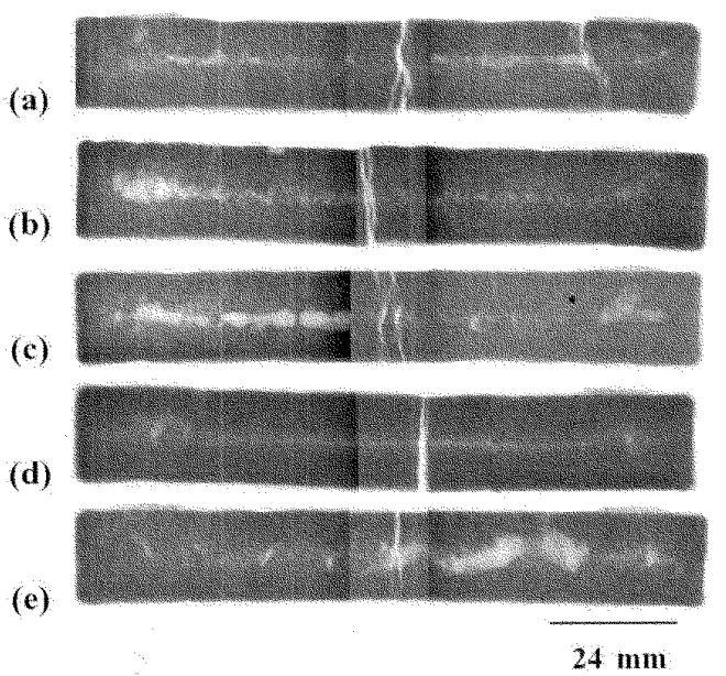 Fig.6 X-ray photos of potassium chloride with -325 mesh mullite cores. (a)0 mass%, (b)7.6 mass%, (c)13.9 mass%, (d)27.7 mass%, (e)42.3 mass%.
